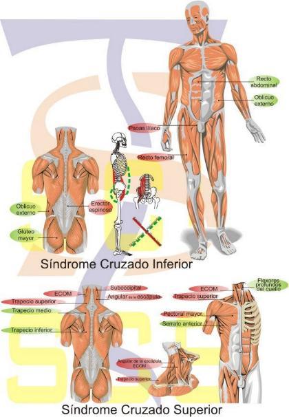 Sindromes cruzados posturales